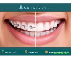 Dental clinic in Mylapore | Best dental Hospital in Mandaveli